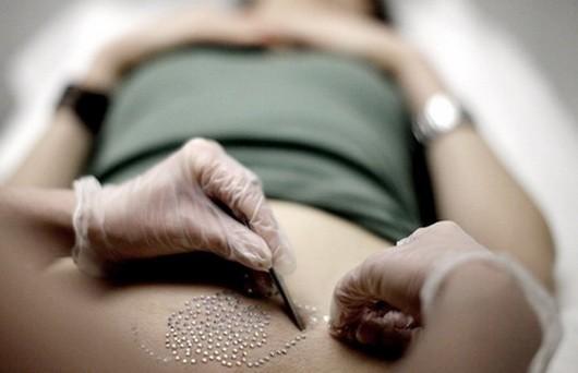 Герпес в интимной зоне: фото, симптомы и лечение